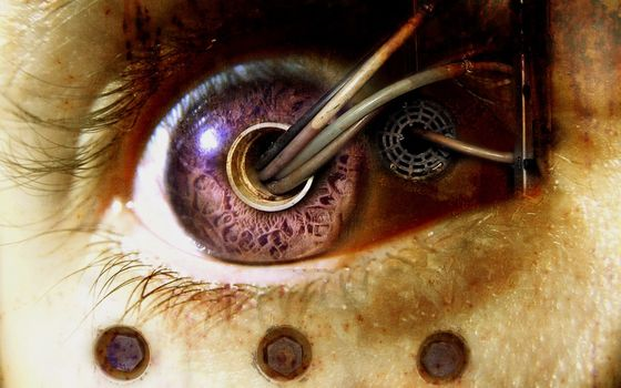 biomechanics, eye, wire